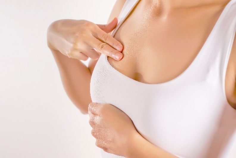 Anaplastyczny chłoniak wielkokomórkowy związany z implantem piersi (BIA-ALCL)